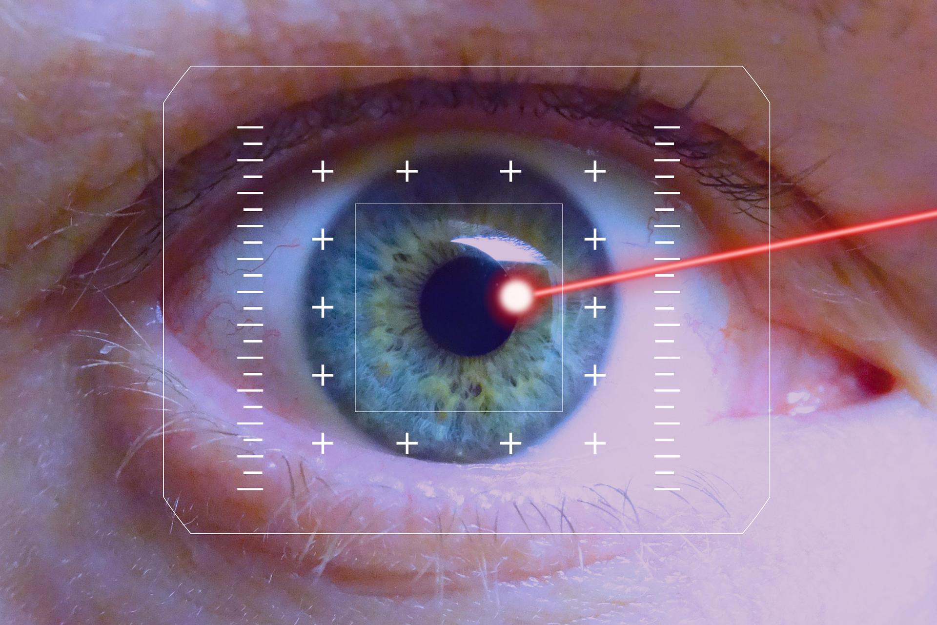 laserowa korekcja przebieg